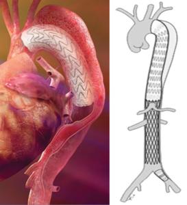Prothese pour dissection aortique de Type B